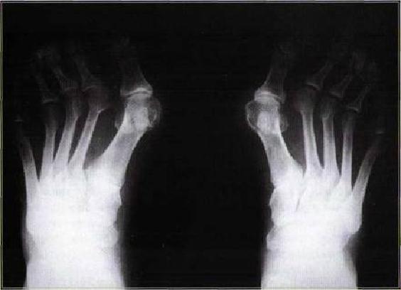 Лечение косточки на ноге у большого пальца с помощью нетрадиционной медицины