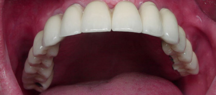 Имплантация зубов – новое слово современной стоматологии