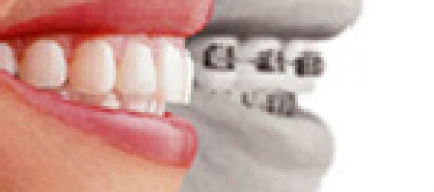 Ваши зубы должны быть ровненькие…
