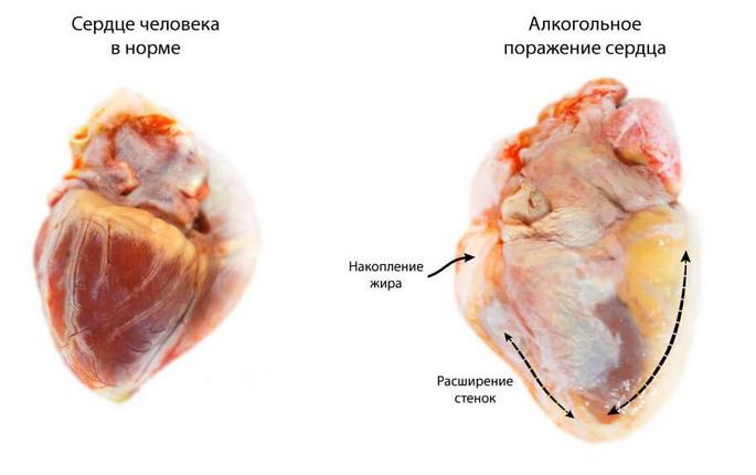 Влияние алкоголя на сердце
