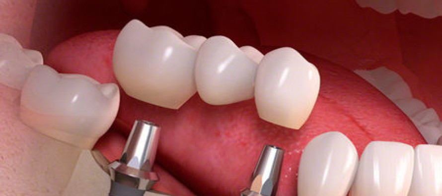 Способ восстановить потерянный зуб