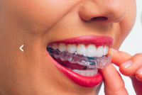 Преимущества отбеливания зубов в стоматологиях Саратова