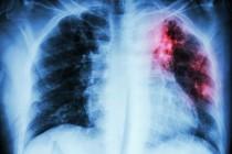 Можно ли лечить туберкулёз амбулаторно