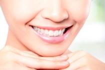 Как сделать белоснежные зубы?